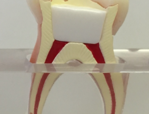Terapia pulpar na Dentição Decídua