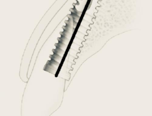 Implantes Imediatos e suas Indicações